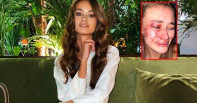 Çeşme'de dayak yediğini söyleyen model Daria Kyryliuk, koronavirüse yakalandı