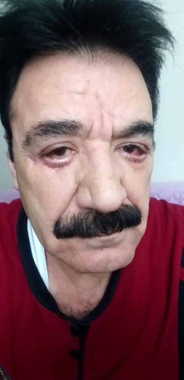 Göz doktoru tarafından estetik operasyon yapılan şarkıcı Hacı Kalan'ın yüzü tanınmaz hale geldi