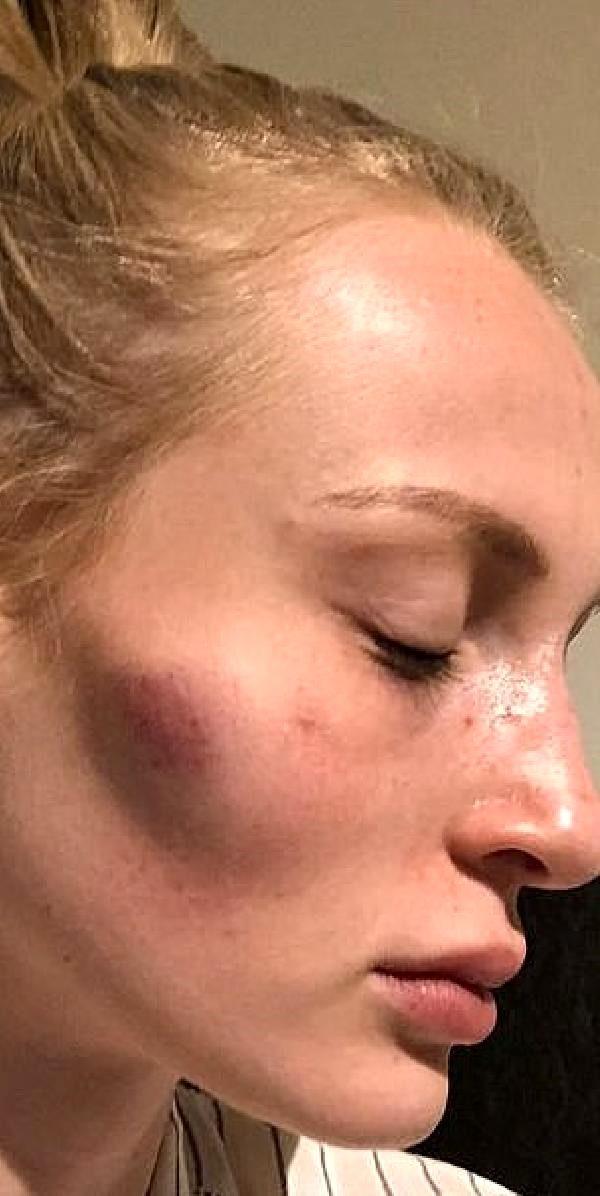 Ünlü model Anthonia Rochus, erkek arkadaşının şiddetine maruz kaldı